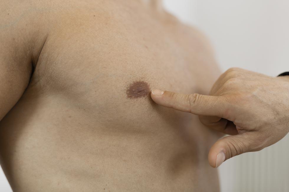 Video Brust-OP bei Männern Vorher-Nachher-Erfahrungsbericht