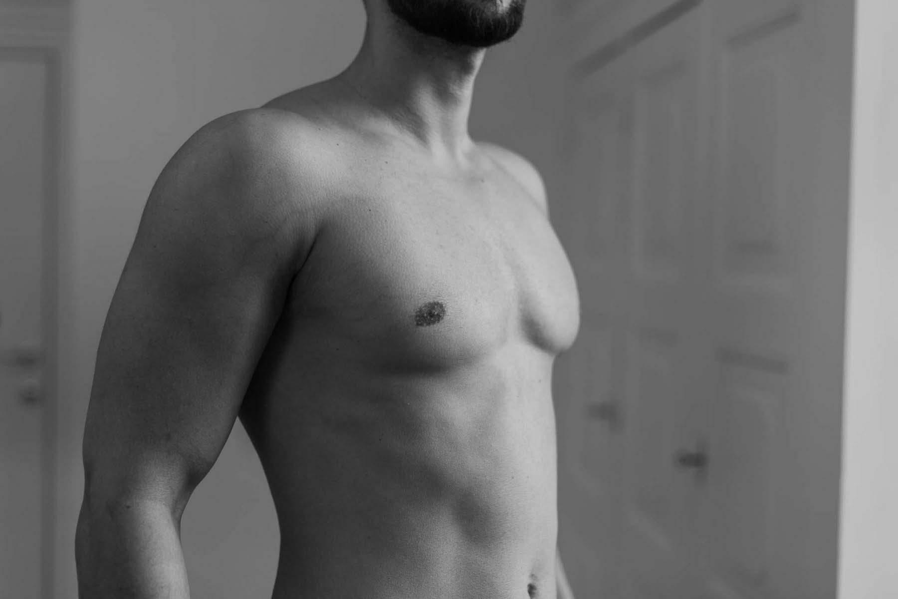 Fettabsaugung, Liposuktion